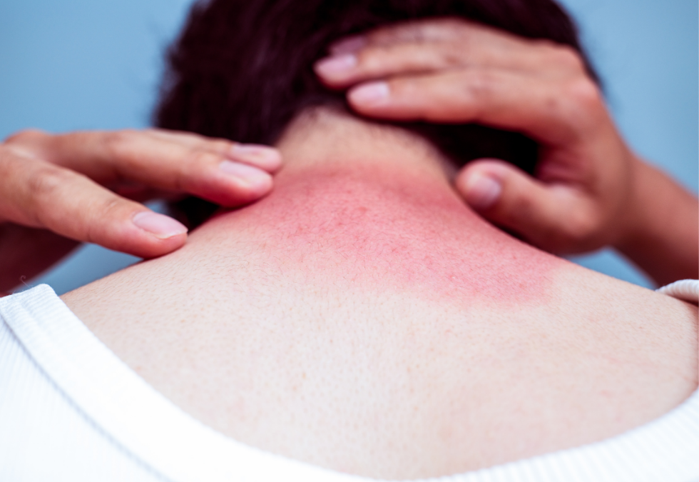 How Do Sunburns Affect Massage Therapy?